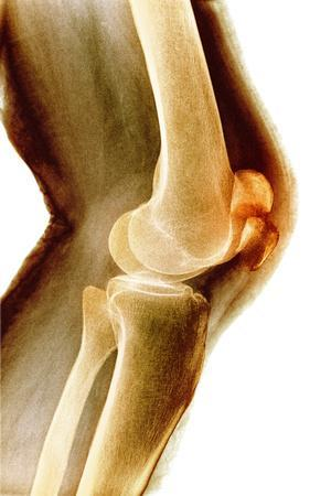 Fractured Kneecap, X-ray-Du Cane Medical-Stretched Canvas Print