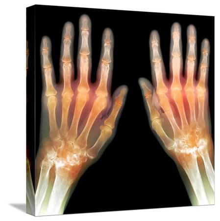du-cane-medical-rheumatoid-arthritis-of-the-hands-x-ray