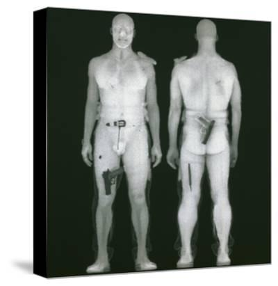 X-ray Views of Man During BodySearch Surveillance--Stretched Canvas Print