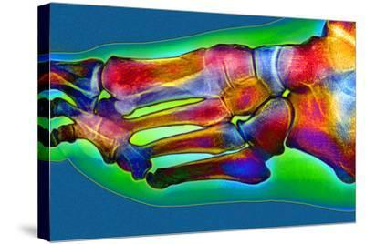 Normal Foot, X-ray-Du Cane Medical-Stretched Canvas Print