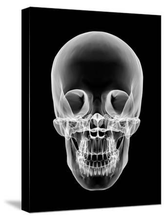 Human Skull, X-ray Artwork-PASIEKA-Stretched Canvas Print