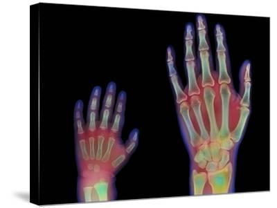 Adult And Child Hand X-rays-Science Photo Library-Stretched Canvas Print