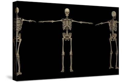 3D Rendering of Human Skeletal System at Different Angles-Stocktrek Images-Stretched Canvas Print