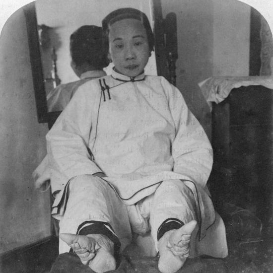 A High Caste Lady's Dainty 'Lily Feet, Showing Method of Deformity, China, 1900-Underwood & Underwood-Photographic Print