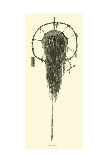 A Scalp--Giclee Print
