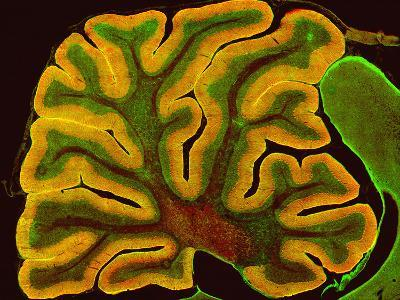 A Section of the Cerebellum That Has Been Fluorescently Labeled for the Ip3 Receptor-Thomas Deerinck-Photographic Print