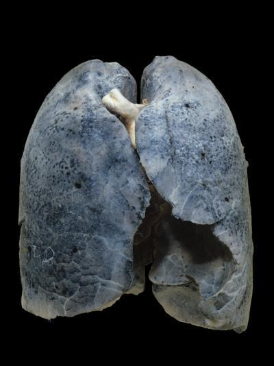 A Smoker's Damaged Lungs-Ralph Hutchings-Photographic Print