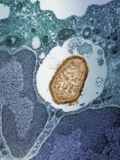 A Staphylococcus Bacterium Engulfed by a Macrophage or Phagocyte-George Musil-Photographic Print