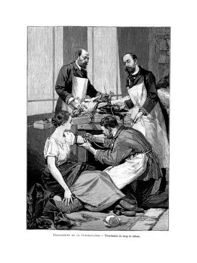 A Tuberculosis Patient Being Given a Transfusion of Goat's Blood, 1891--Giclee Print
