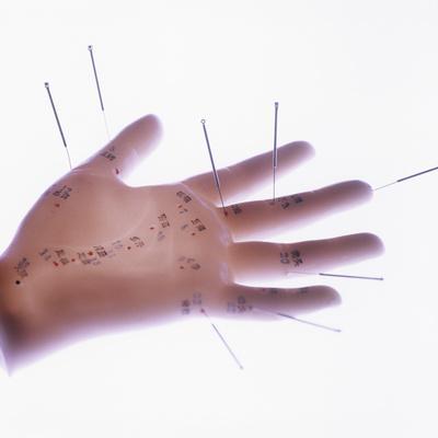 https://imgc.artprintimages.com/img/print/acupuncture-model_u-l-pzfa5n0.jpg?p=0