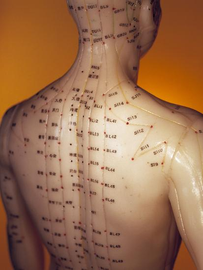 Acupuncture Model-Lawrence Lawry-Photographic Print