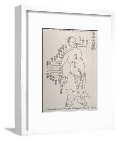 Acupuncture the Meridian of the Large Intestine--Framed Giclee Print