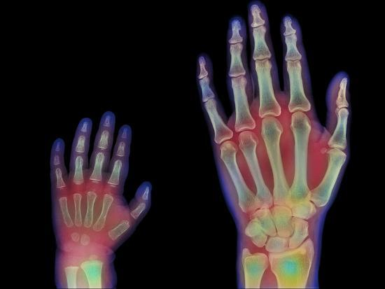 Adult And Child Hand X-rays-Science Photo Library-Photographic Print