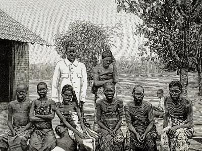 Africa. Native Affected by Sleeping Sickness, 1903--Giclee Print