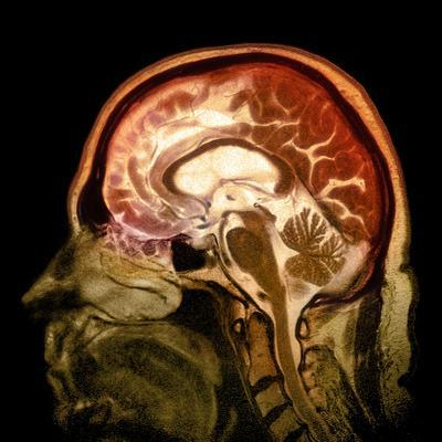 Alcoholic Dementia, MRI Scan-Du Cane Medical-Photographic Print