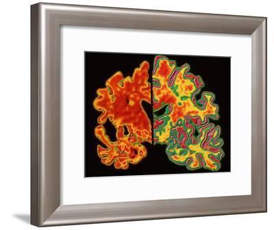 Alzheimer's Brain-PASIEKA-Framed Photographic Print