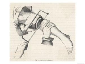 Amputation of Leg
