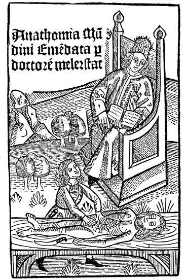 Anatomy Demonstration, 1493--Giclee Print