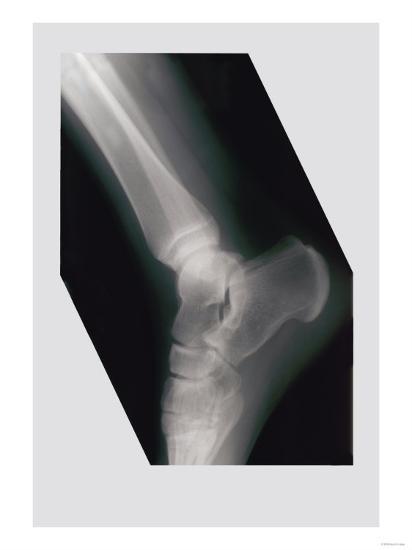 Ankle--Art Print