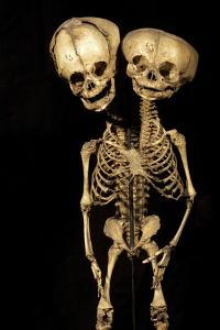 Conjoined Twins by Arno Massee