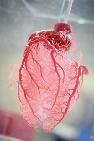 Resin Cast of Heart Blood Vessels