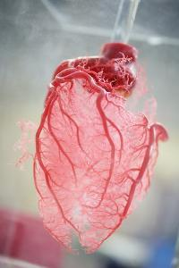 Resin Cast of Heart Blood Vessels by Arno Massee