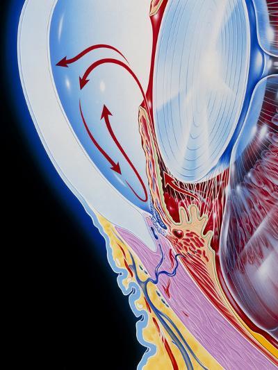 Art of Section Through Human Eye Showing Glaucoma-John Bavosi-Photographic Print