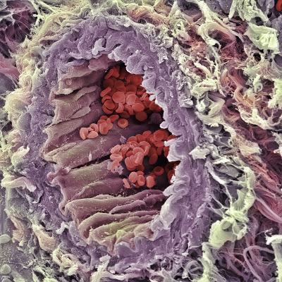 Artery SEM-Steve Gschmeissner-Photographic Print