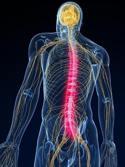 Back Pain, Conceptual Artwork-SCIEPRO-Photographic Print