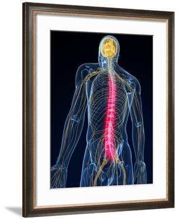Back Pain, Conceptual Artwork-SCIEPRO-Framed Photographic Print