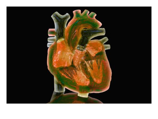 Biomedical Illustration of a Glass Heart-Carol & Mike Werner-Photographic Print