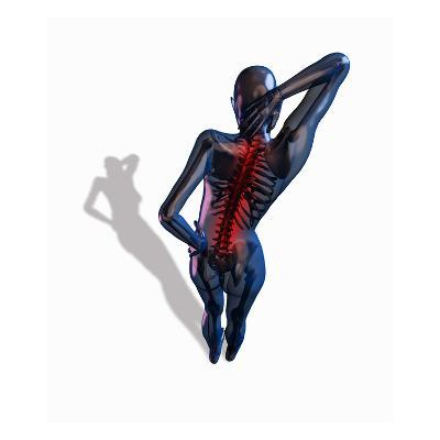 Biomedical Illustration Showing a Person Suffering from Back Pain-Scott Camazine-Giclee Print