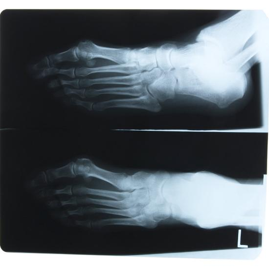 Black and White X-Ray Photograph of Feet of Person--Photographic Print
