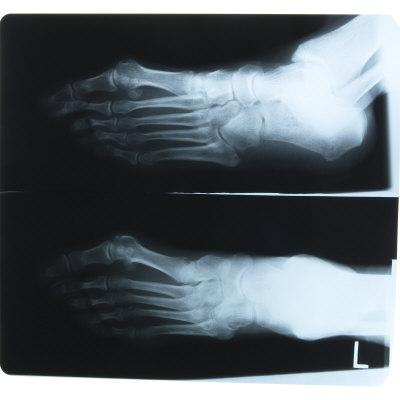 https://imgc.artprintimages.com/img/print/black-and-white-x-ray-photograph-of-feet-of-person_u-l-q10x7lg0.jpg?p=0