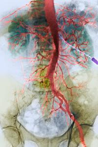 Blocked Artery, X-ray