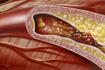 Blocked Coronary Artery, Artwork-John Bavosi-Photographic Print