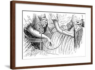 Blood Transfusion, C1880--Framed Giclee Print