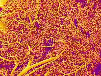 Blood Vessel Cast from Rat Pancreas-Micro Discovery-Photographic Print