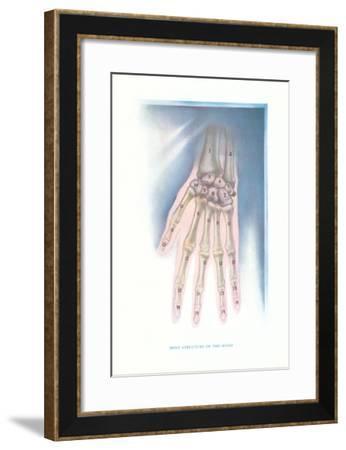 Bones of the Hand--Framed Art Print