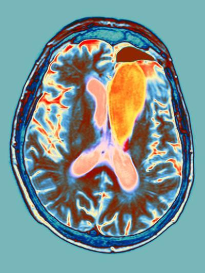 Brain Cancer Treatment, MRI Scan-Du Cane Medical-Photographic Print