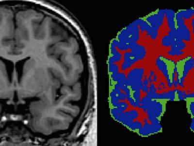 Brain Scans: in the Tissue Segmented Image-Arthur Toga-Photographic Print