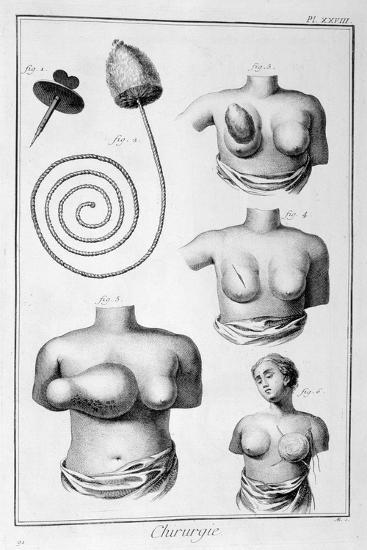 Breast Surgery, 1751-1777-Denis Diderot-Giclee Print