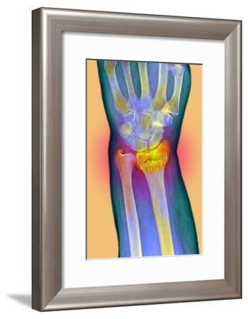 Broken Wrist, X-ray-Du Cane Medical-Framed Photographic Print