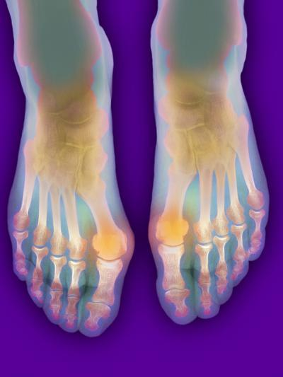 Bunions, X-ray-Science Photo Library-Photographic Print