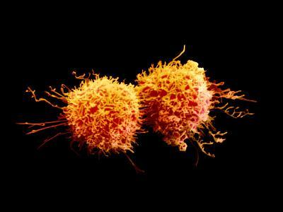 Cancer Cells Dividing-David Phillips-Photographic Print