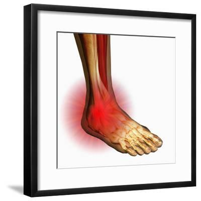 Ankle Pain, Human Ankle Showing Bones And Muscles