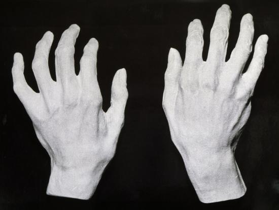 Cast of the Hands of Ferruccio Busoni--Giclee Print