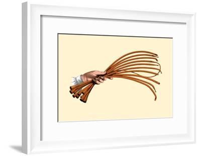 Catheters-Jules Porges-Framed Art Print