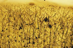 Cerebral Cortex Nerve Cells