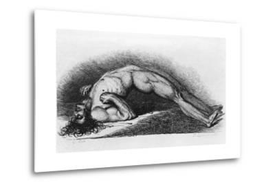 The Contracted Body of Soldier Suffering from Tetanus